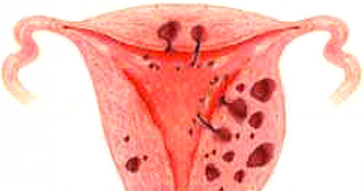 Kanker Ganas Pembunuh Wanita: 2. Kanker Rahim atau Kanker ...