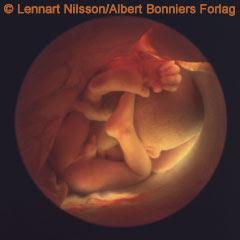 el feto a las 32 semanas de gestacion