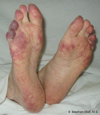 Treatment For Diseases Of Humen Chilblains Treatment