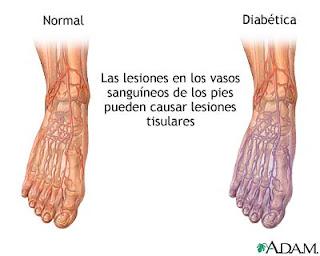 Ejercicios para el dolor de la pierna delantera de la ciática