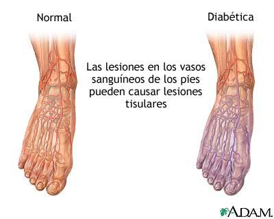 diabetes y dolor en piernas y pies