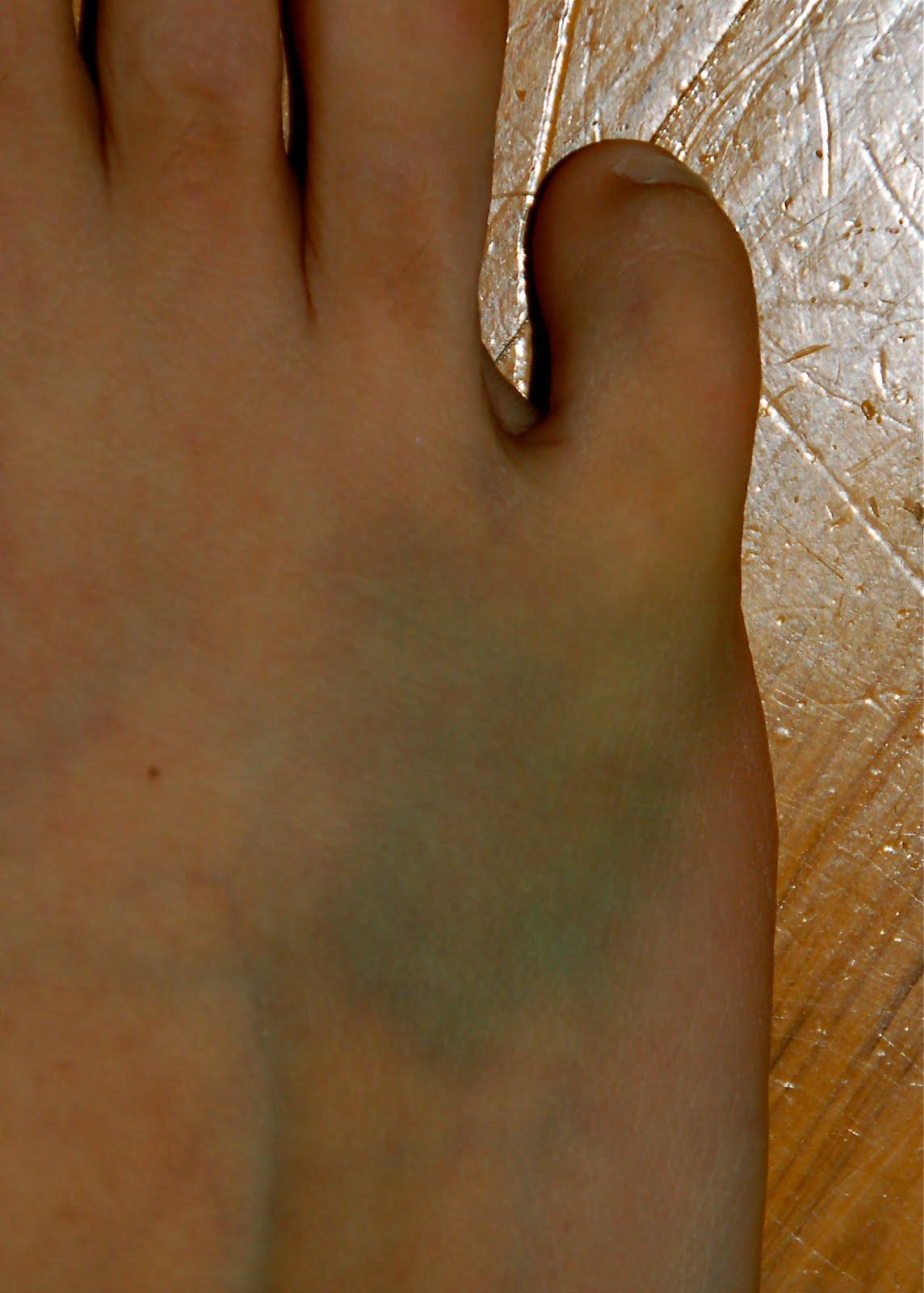 Big Toe Fracture - Fracture Treatment