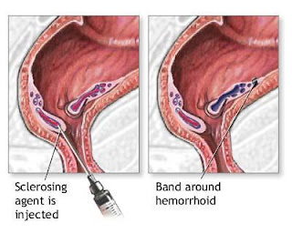 Natural Hemorrhoids Cure Traditional Hemorrhoid Treatment