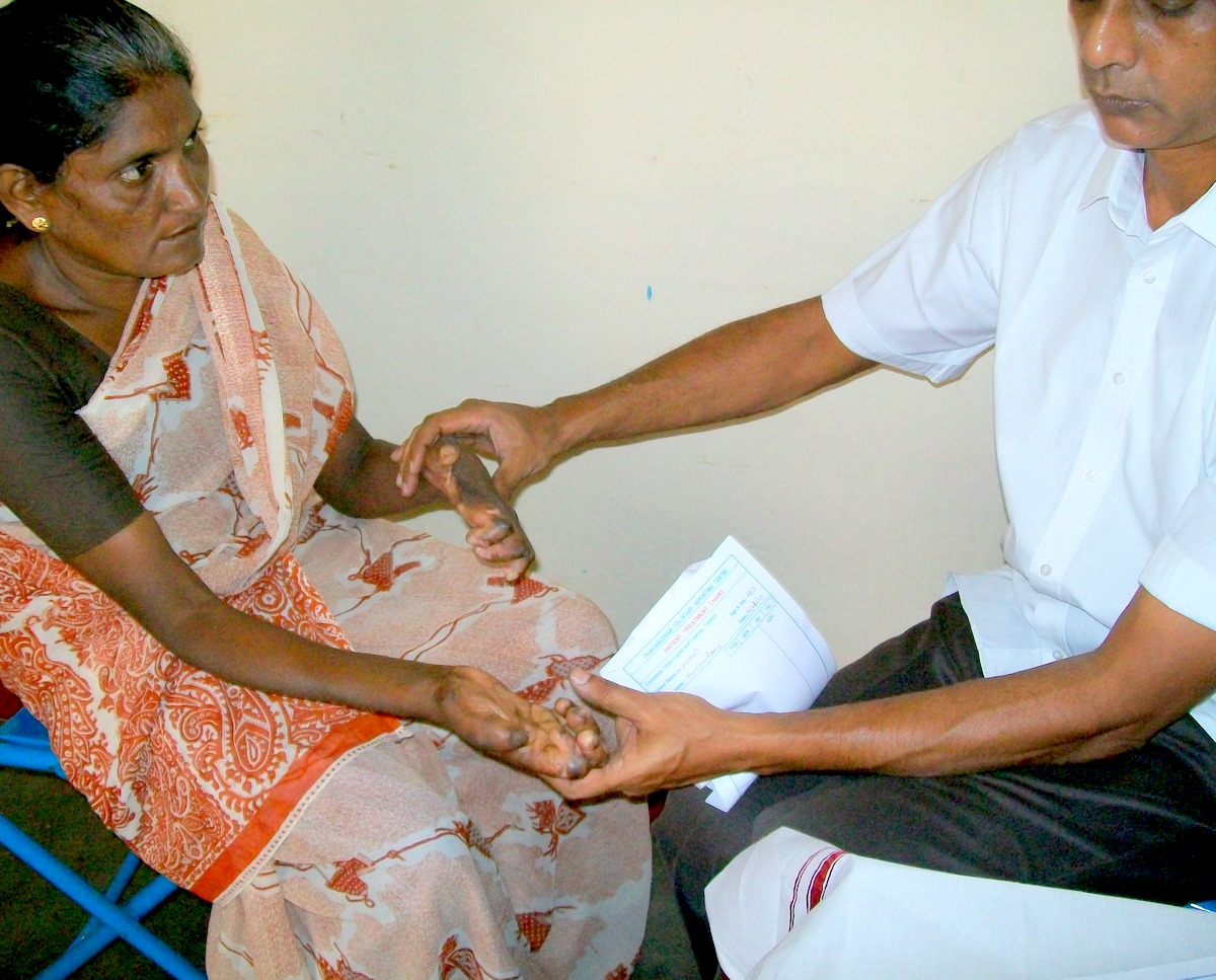 Prevention of further deformity in LeprosyLeprosy Prevention