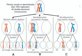 results of nondisjunction in sex chromosomes in Manchester,
