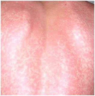 dermatitis caused by vitamin B12 deficiency