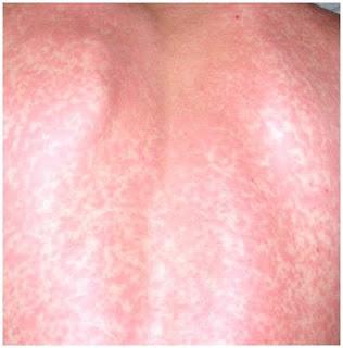 Vitamin B12 (Cyanocobalamin) deficiency causes white spots ... B12 Deficiency Skin