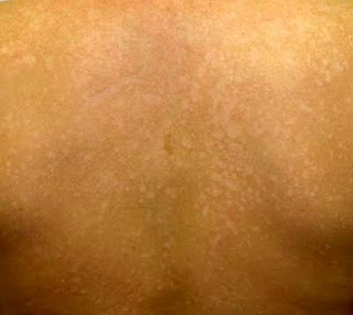 tinea versicolor infections