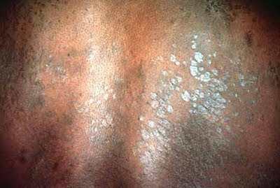 Tinea versicolor infected back