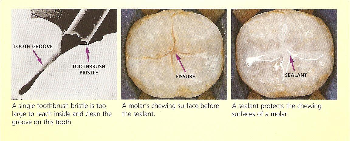 Pediatric Dentistry: Dental Sealants