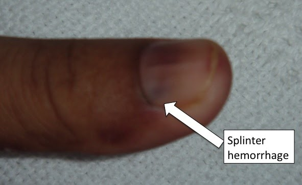 Emergency Medicine Blog Peripheral Signs Of Infective Endocarditis Osler node (plural osler nodes). emergency medicine blog blogger