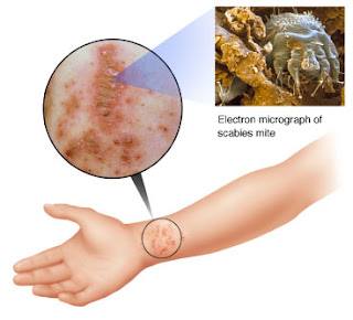 COLLEMBOLIASIS and MITES – Two Amazing Reports   Morgellons