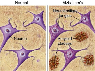 amyloid plaques and neurofibrillary tangles in Alzheimer's