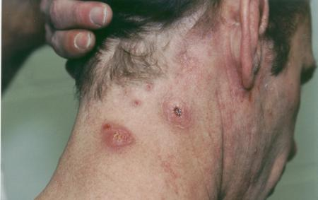 Mrsa staph infection