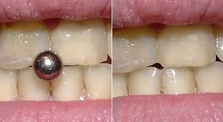 Dentes Danificados