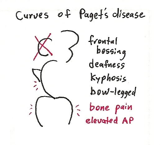 Not My Second Opinion: Curves of Paget's Disease