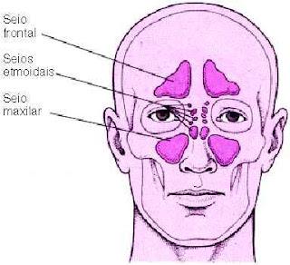 Sinusopatia Maxilar