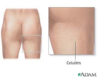 disimular la celulitis