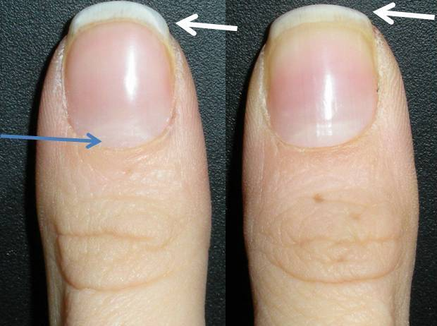 Best Natural Cuticle Treatment