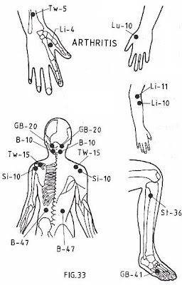 natural therapies in your hand: Acupressure Points- Arthritis